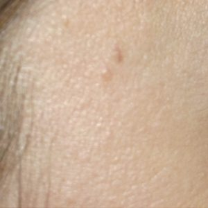 cherry_angioma_after_IPL_treatment