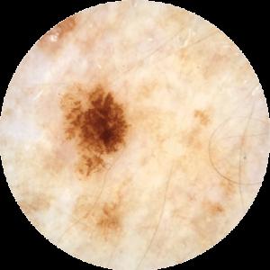skincancercheckperth1