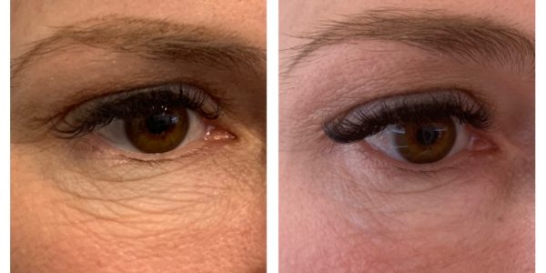 plasma pen eye lift before and after